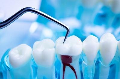 השתלות שיניים מהירות יתרונות חסרונות השיטה